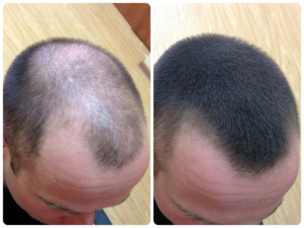 Как определить из за чего выпадают волосы