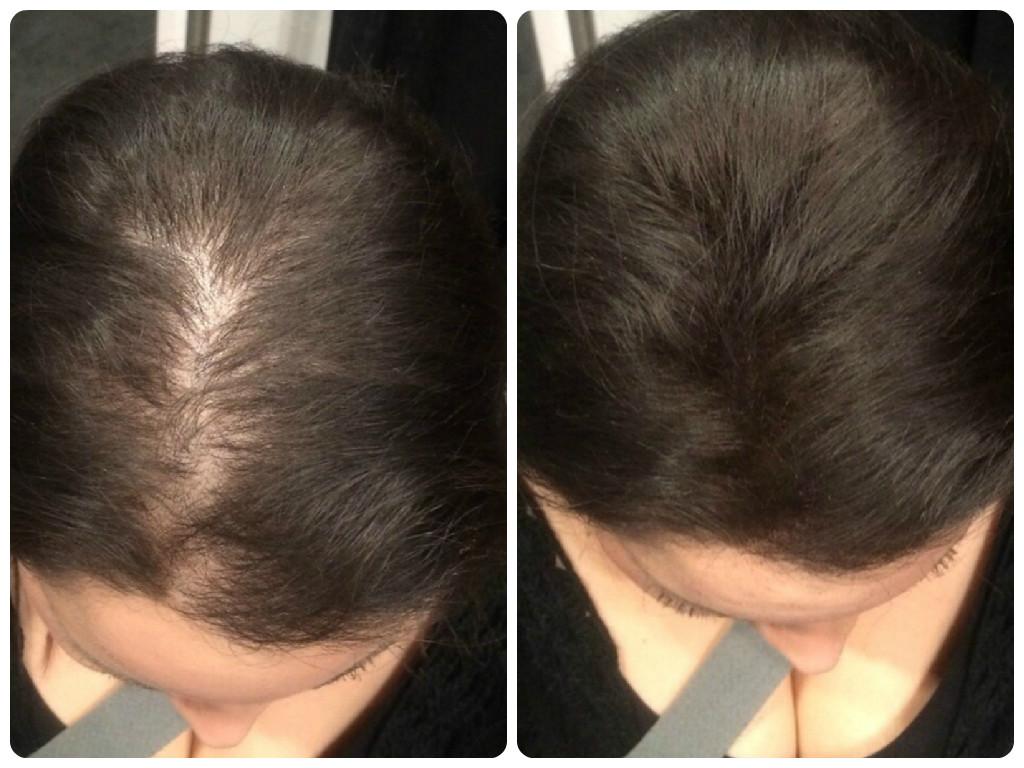 Средство для сухих волос без силиконов