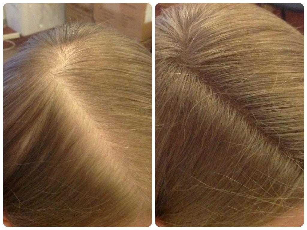 Восстанавливающие средства для волос форум