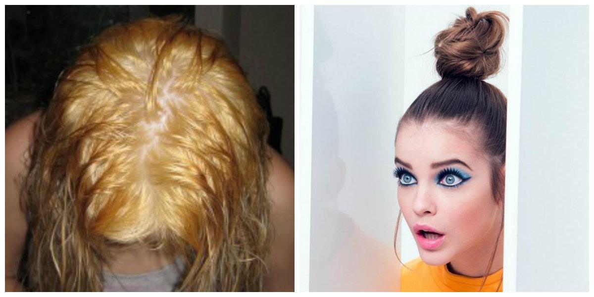 Может при аллергии выпадать волосы