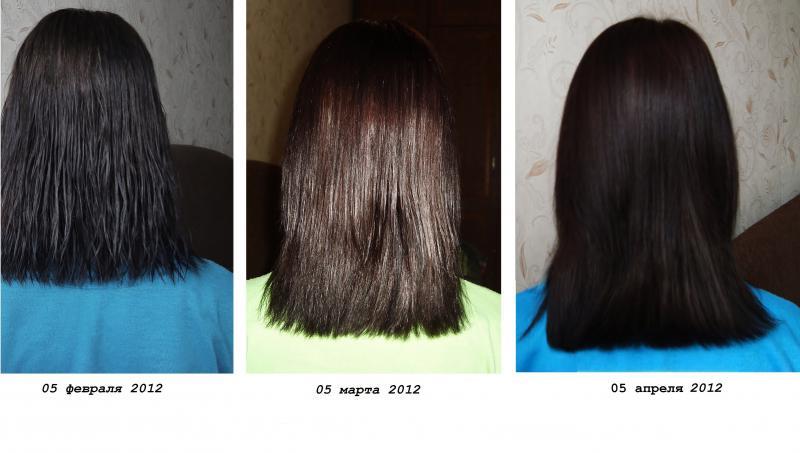 Никотиновая кислота для волос: фото 1