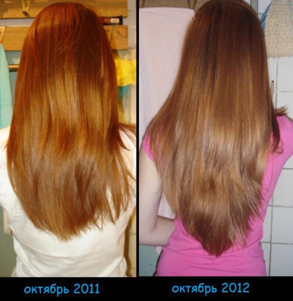 Никотиновая кислота для волос: фото 2